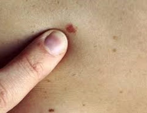 Skin Cancer, Signs and Symptoms