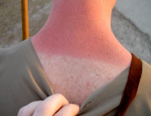 Sunshine, Sunscreen and the Risk of Skin Cancer